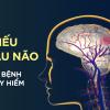 4 biến chứng đặc biệt nguy hiểm gây tử vong của bệnh thiếu máu não