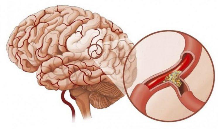 Nguyên nhân nào gây đau nửa đầu bên phải?